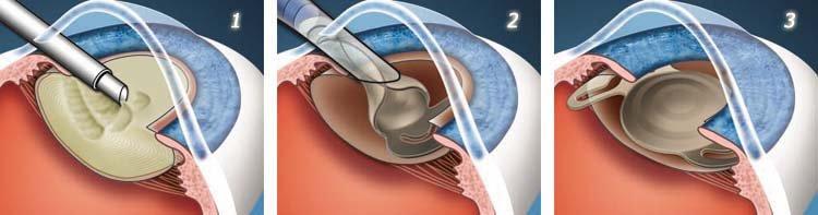 Лечение катаракты в глазной клинике Тарус