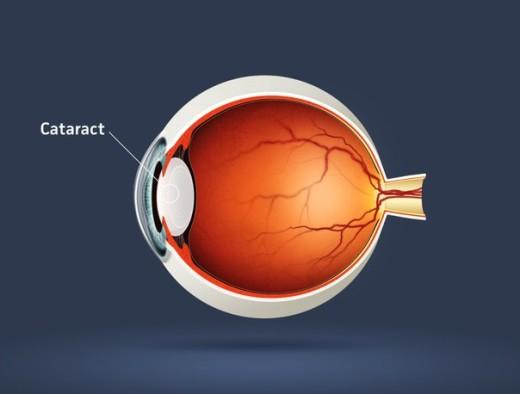 Образование катаракты