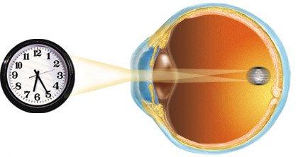 Лечение Астигматизма в офтальмологическом центре тарус