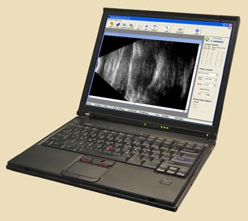 Ультразвуковой B-scan