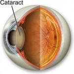 Хірургія і лікування катаракти у клініці Тарус