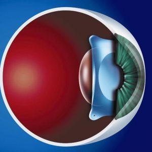 Внутрішньоочна лінза Staar - очна клініка Тарус