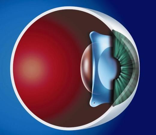 Внутриглазная линза Staar - глазная клиника Тарус