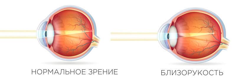 myopia - тарус