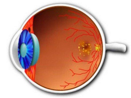 Заболевания сетчатки глаза