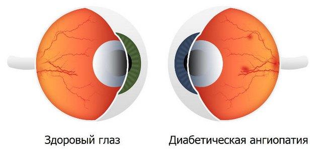 Ангиопатия сетчатки глаза. Симптомы и лечение в центре Тарус