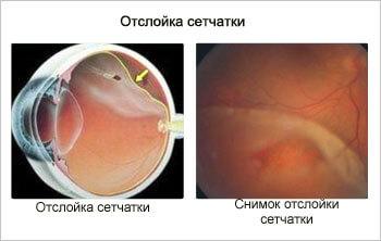 Лечение отслойки сетчатки - Тарус