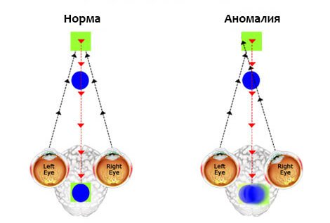 амблиопия глаз  лечение в Тарусе