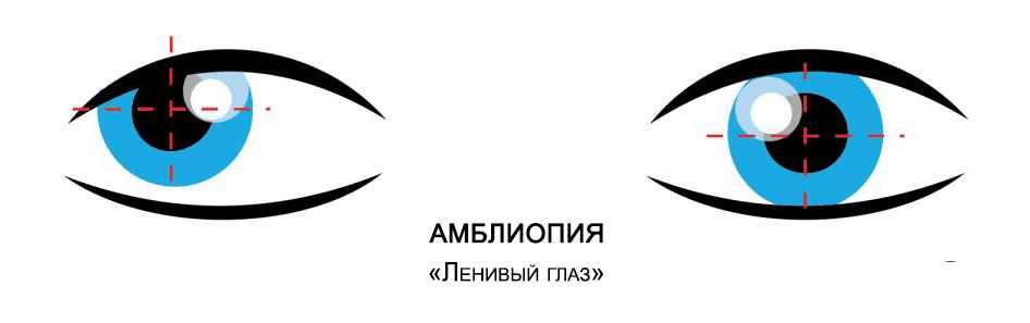 Лечение амблиопии - синдрома ленивого глаза - Тарус