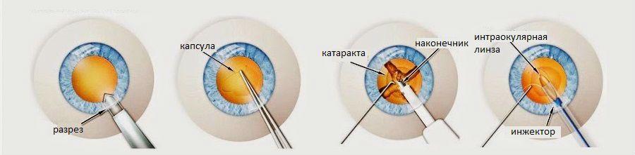 Факоэмульсификация катаракты - Тарус