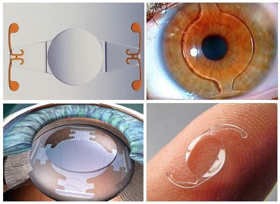 Имплантация интраокулярной линзы - Тарус