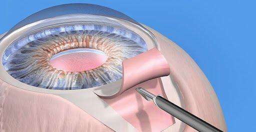 Хирургия глаукомы